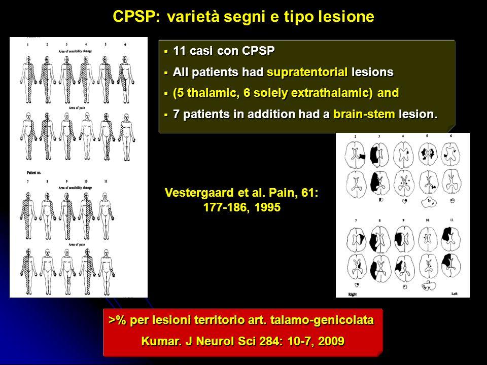 11 casi con CPSP 11 casi con CPSP All patients had supratentorial lesions All patients had supratentorial lesions (5 thalamic, 6 solely extrathalamic)