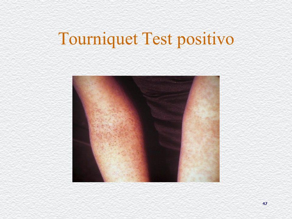 47 Tourniquet Test positivo