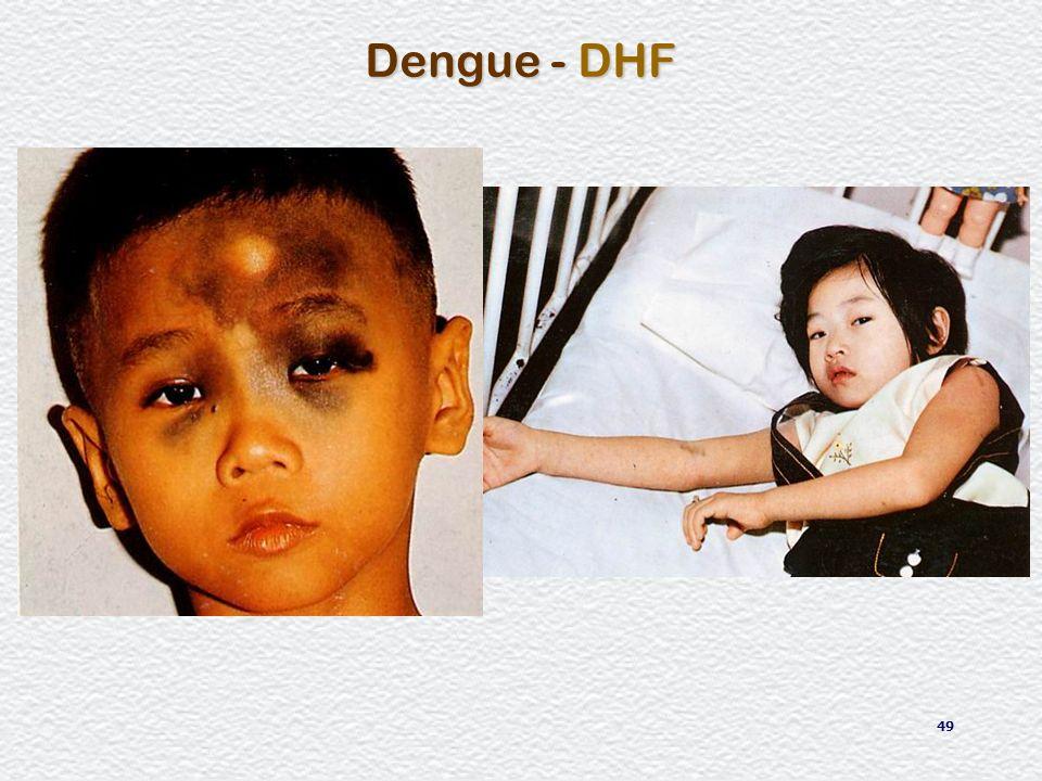 49 Dengue - DHF