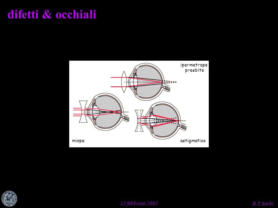 R.T.Sorbi 15 febbraio 2005 miope ipermetrope astigmatico difetti & occhiali presbite