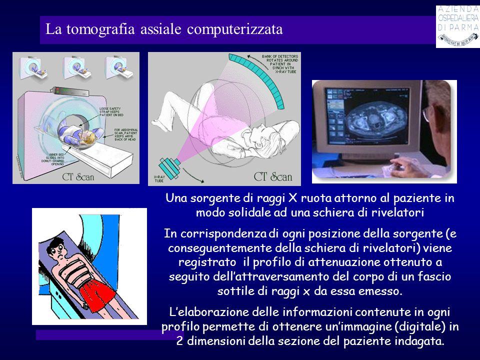 La tomografia assiale computerizzata Una sorgente di raggi X ruota attorno al paziente in modo solidale ad una schiera di rivelatori In corrispondenza