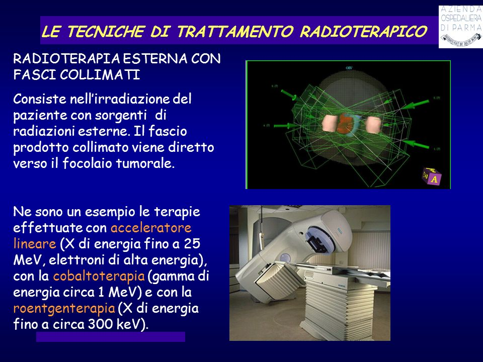 LE TECNICHE DI TRATTAMENTO RADIOTERAPICO RADIOTERAPIA ESTERNA CON FASCI COLLIMATI Consiste nellirradiazione del paziente con sorgenti di radiazioni es