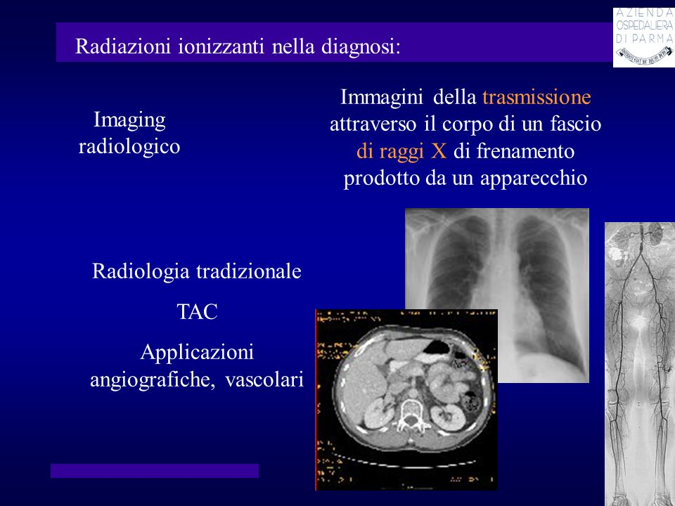 Immagini della distribuzione nel corpo di un farmaco marcato con un radionuclide emettitore di radiazioni o di positroni Medicina nucleare Radiazioni ionizzanti nella diagnosi: