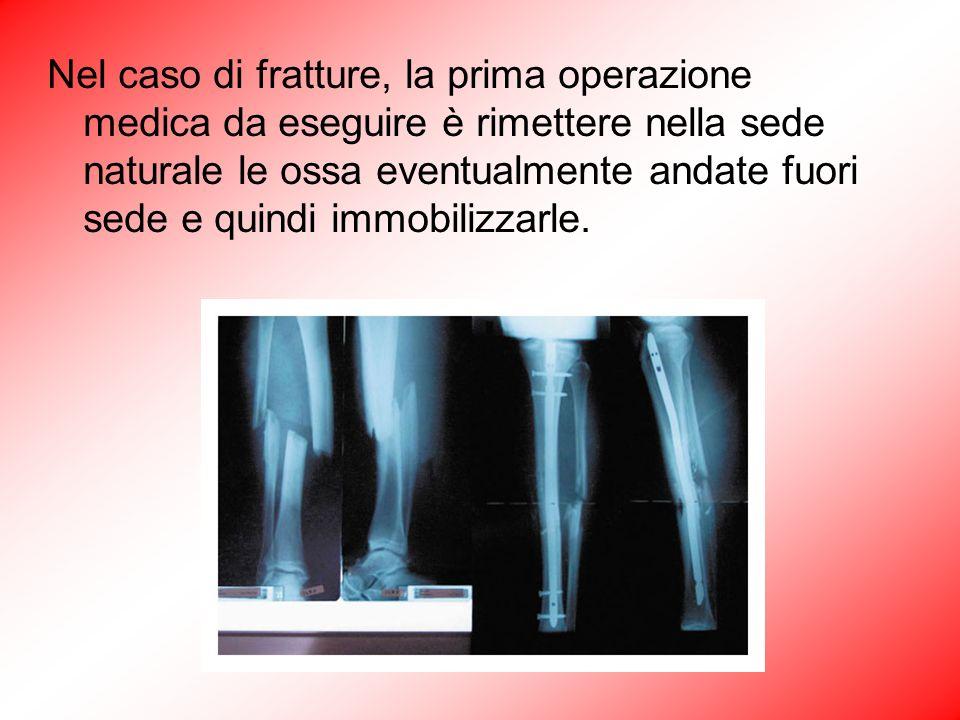 Nel caso di fratture, la prima operazione medica da eseguire è rimettere nella sede naturale le ossa eventualmente andate fuori sede e quindi immobili
