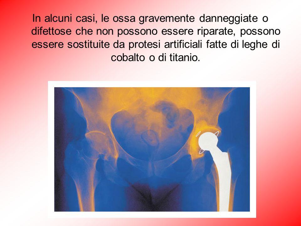 In alcuni casi, le ossa gravemente danneggiate o difettose che non possono essere riparate, possono essere sostituite da protesi artificiali fatte di