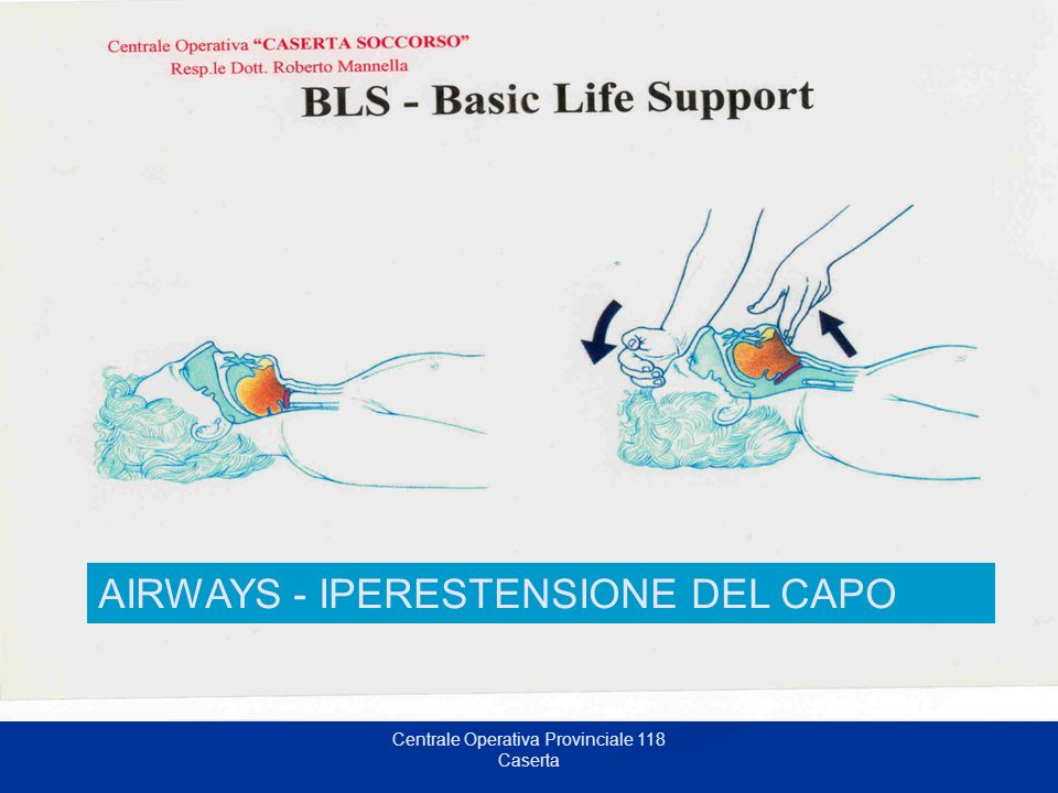 Centrale Operativa Provinciale 118 Caserta A = Airways AIRWAYS - IPERESTENSIONE DEL CAPO