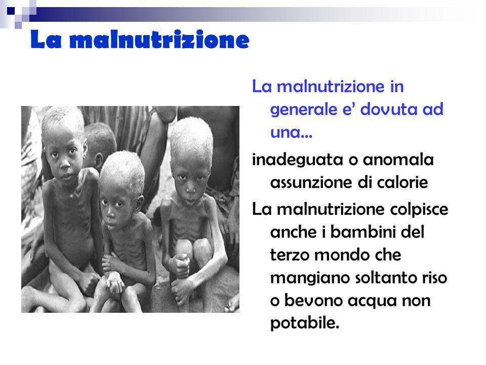 La malnutrizione La malnutrizione in generale e dovuta ad una… inadeguata o anomala assunzione di calorie La malnutrizione colpisce anche i bambini de