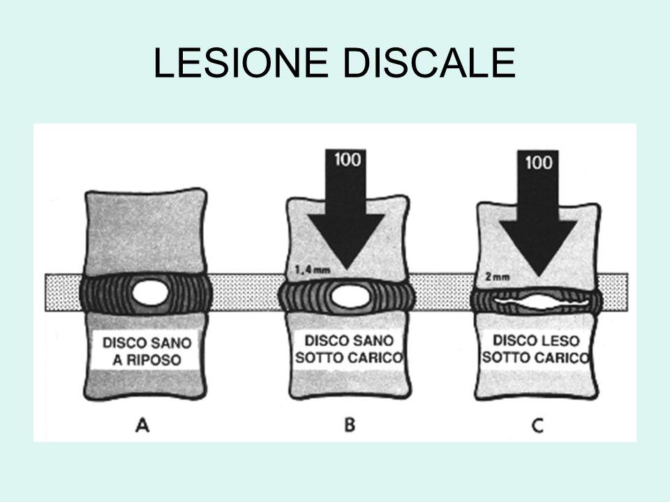 LESIONE DISCALE
