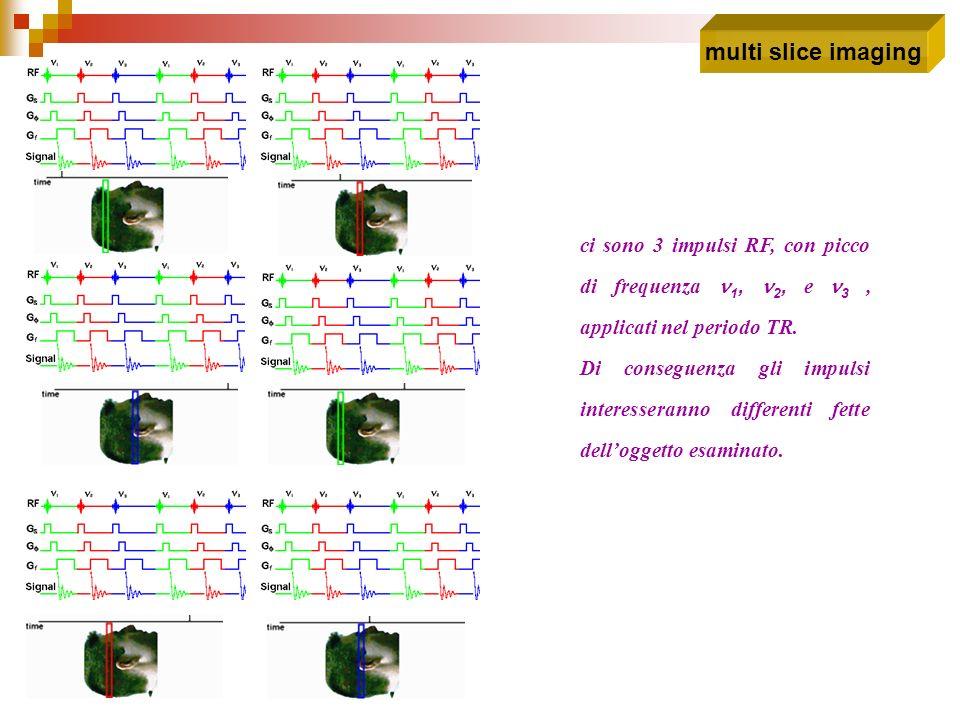 ci sono 3 impulsi RF, con picco di frequenza 1, 2, e 3, applicati nel periodo TR. Di conseguenza gli impulsi interesseranno differenti fette dellogget