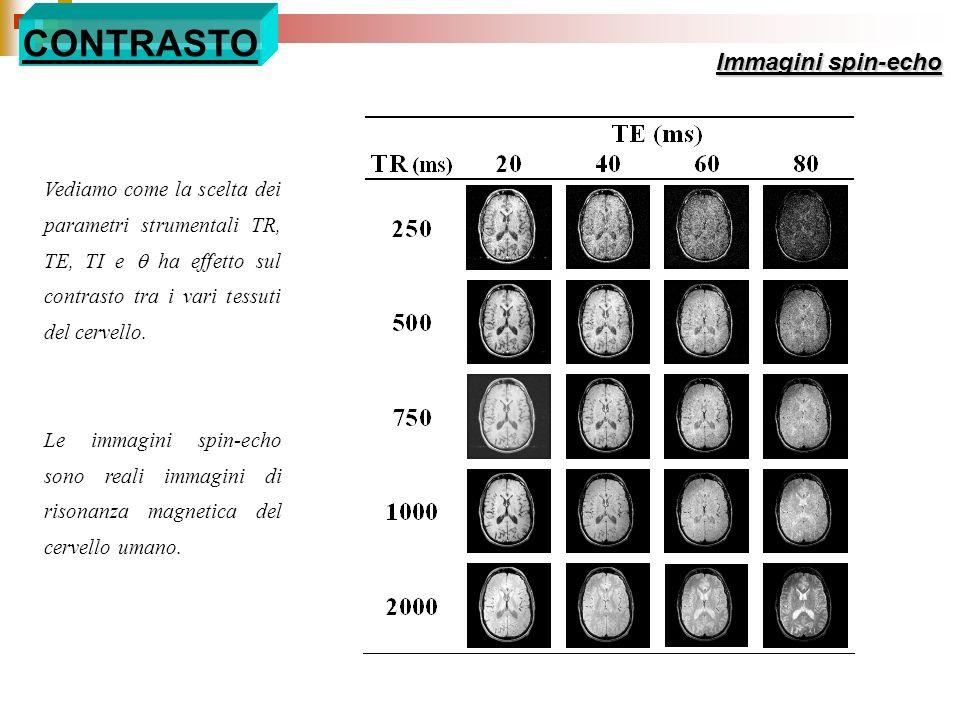 Vediamo come la scelta dei parametri strumentali TR, TE, TI e ha effetto sul contrasto tra i vari tessuti del cervello. Le immagini spin-echo sono rea