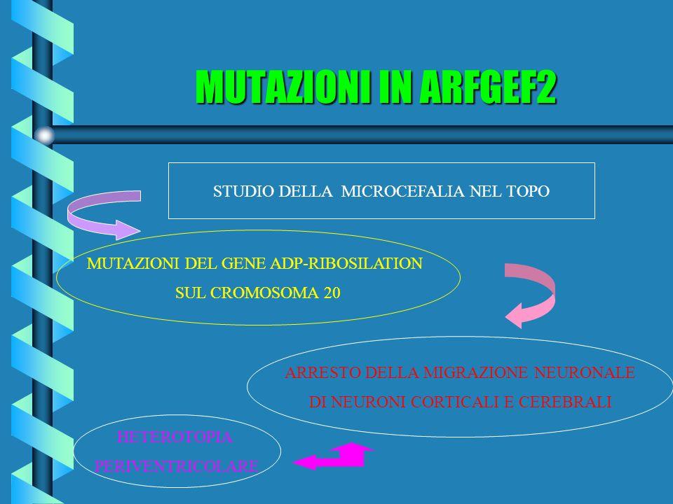 MUTAZIONI IN ARFGEF2 STUDIO DELLA MICROCEFALIA NEL TOPO MUTAZIONI DEL GENE ADP-RIBOSILATION SUL CROMOSOMA 20 ARRESTO DELLA MIGRAZIONE NEURONALE DI NEU