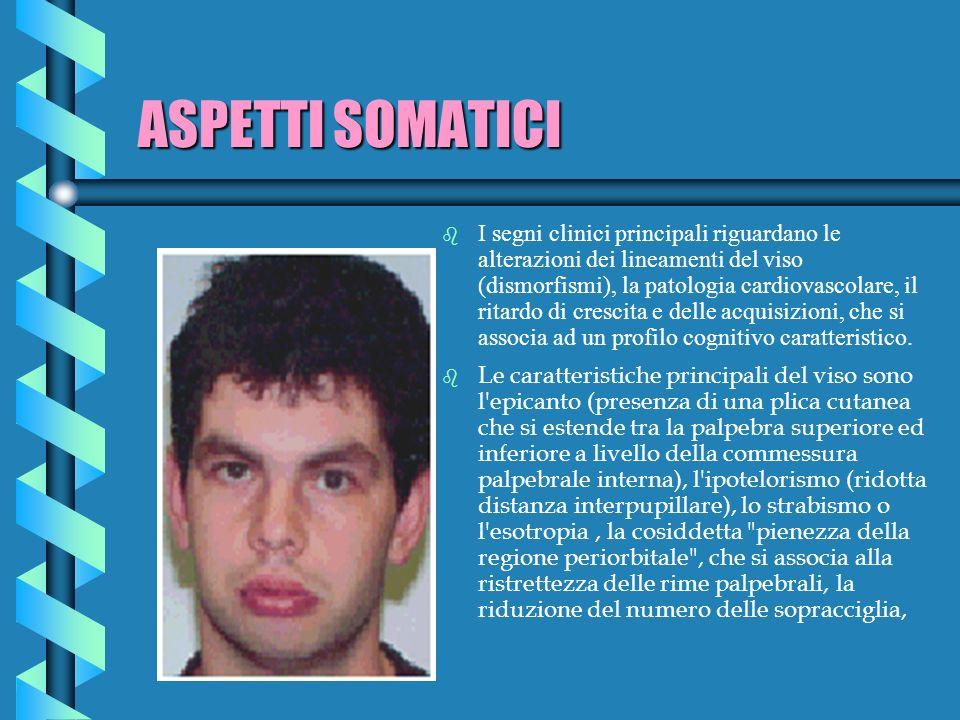 ASPETTI SOMATICI b I segni clinici principali riguardano le alterazioni dei lineamenti del viso (dismorfismi), la patologia cardiovascolare, il ritard