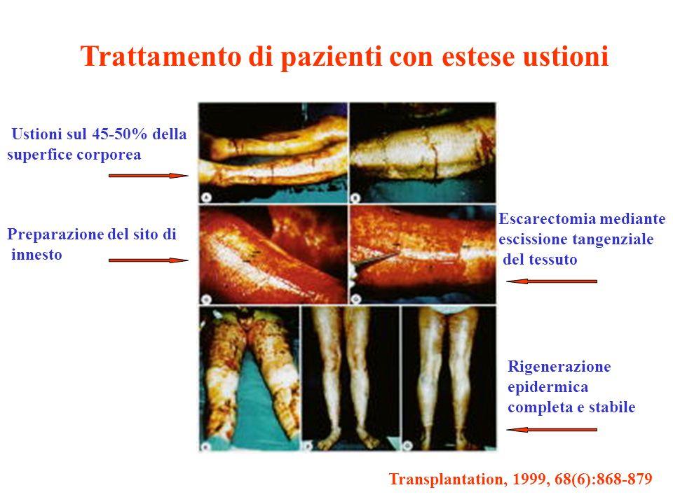 Trattamento di pazienti con estese ustioni Transplantation, 1999, 68(6):868-879 Ustioni sul 45-50% della superfice corporea Preparazione del sito di i