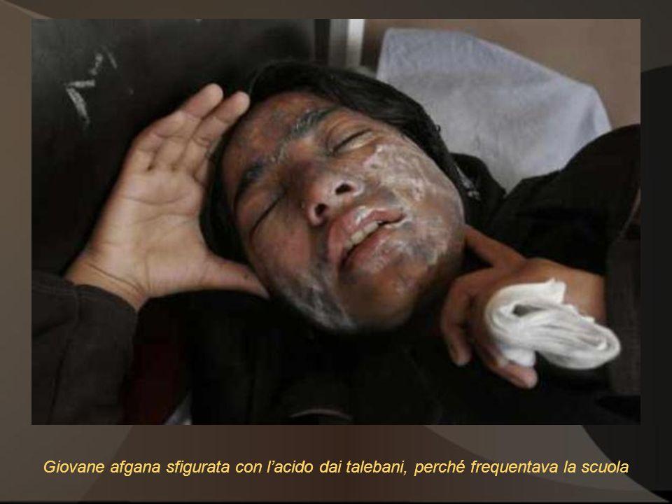 Giovane afgana sfigurata con lacido dai talebani, perché frequentava la scuola