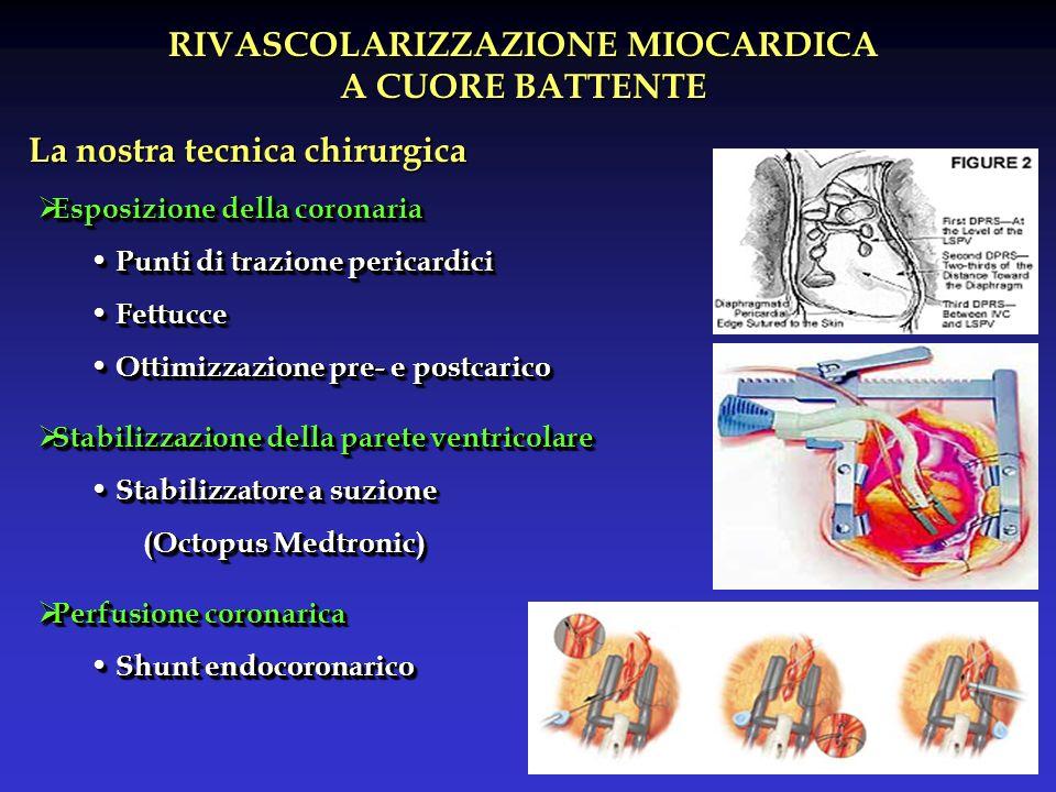 RIVASCOLARIZZAZIONE MIOCARDICA A CUORE BATTENTE La nostra tecnica chirurgica Esposizione della coronaria Esposizione della coronaria Punti di trazione pericardici Punti di trazione pericardici Fettucce Fettucce Ottimizzazione pre- e postcarico Ottimizzazione pre- e postcarico Stabilizzazione della parete ventricolare Stabilizzazione della parete ventricolare Stabilizzatore a suzione Stabilizzatore a suzione (Octopus Medtronic) Perfusione coronarica Perfusione coronarica Shunt endocoronarico Shunt endocoronarico Esposizione della coronaria Esposizione della coronaria Punti di trazione pericardici Punti di trazione pericardici Fettucce Fettucce Ottimizzazione pre- e postcarico Ottimizzazione pre- e postcarico Stabilizzazione della parete ventricolare Stabilizzazione della parete ventricolare Stabilizzatore a suzione Stabilizzatore a suzione (Octopus Medtronic) Perfusione coronarica Perfusione coronarica Shunt endocoronarico Shunt endocoronarico