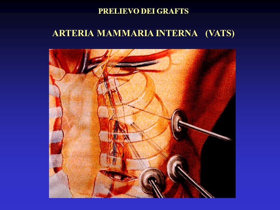 PRELIEVO DEI GRAFTS ARTERIA MAMMARIA INTERNA (VATS)