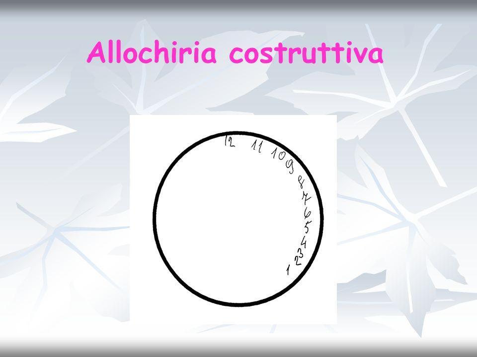 Allochiria costruttiva