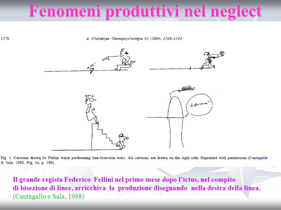 Fenomeni produttivi nel neglect Il grande regista Federico Fellini nel primo mese dopo lictus, nel compito di bisezione di linee, arricchiva la produz