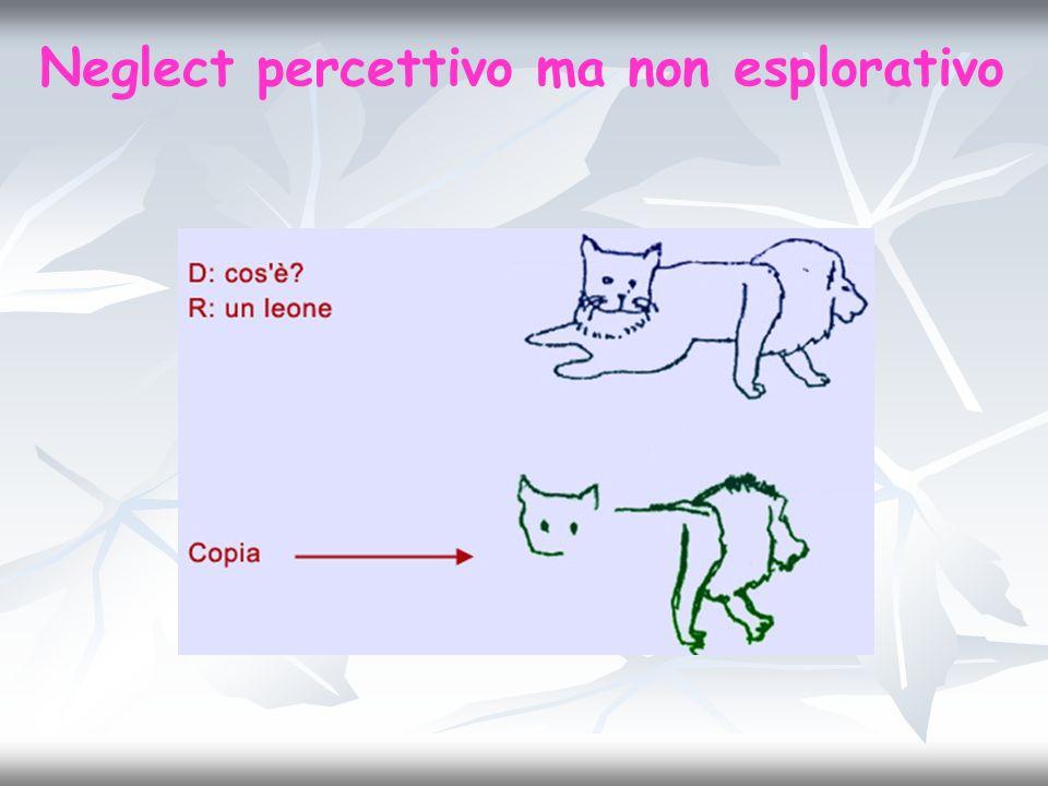 Neglect percettivo ma non esplorativo