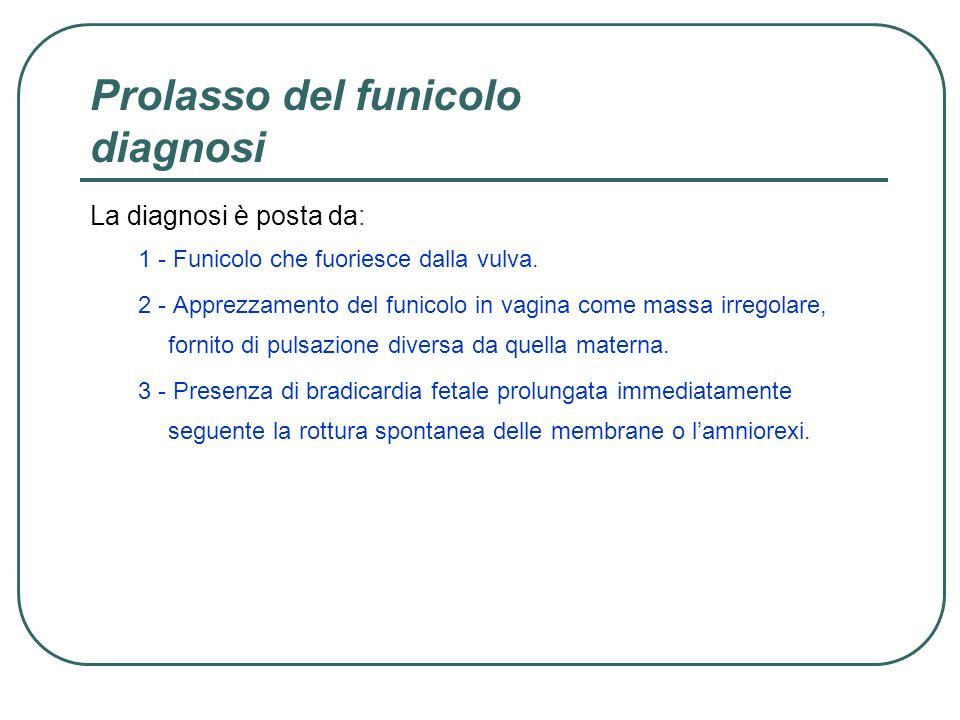 Prolasso del funicolo diagnosi La diagnosi è posta da: 1 - Funicolo che fuoriesce dalla vulva. 2 - Apprezzamento del funicolo in vagina come massa irr