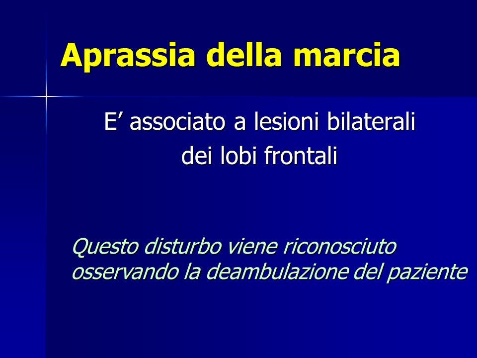 Aprassia della marcia E associato a lesioni bilaterali dei lobi frontali Questo disturbo viene riconosciuto osservando la deambulazione del paziente