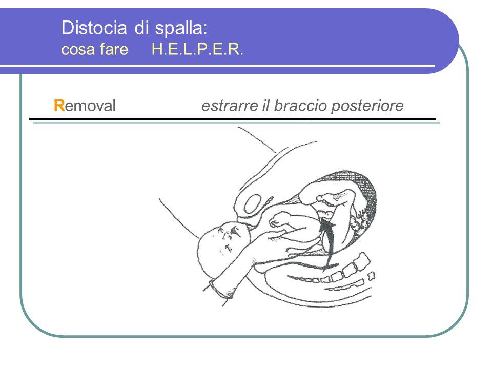 Distocia di spalla: cosa fare H.E.L.P.E.R. Removalestrarre il braccio posteriore