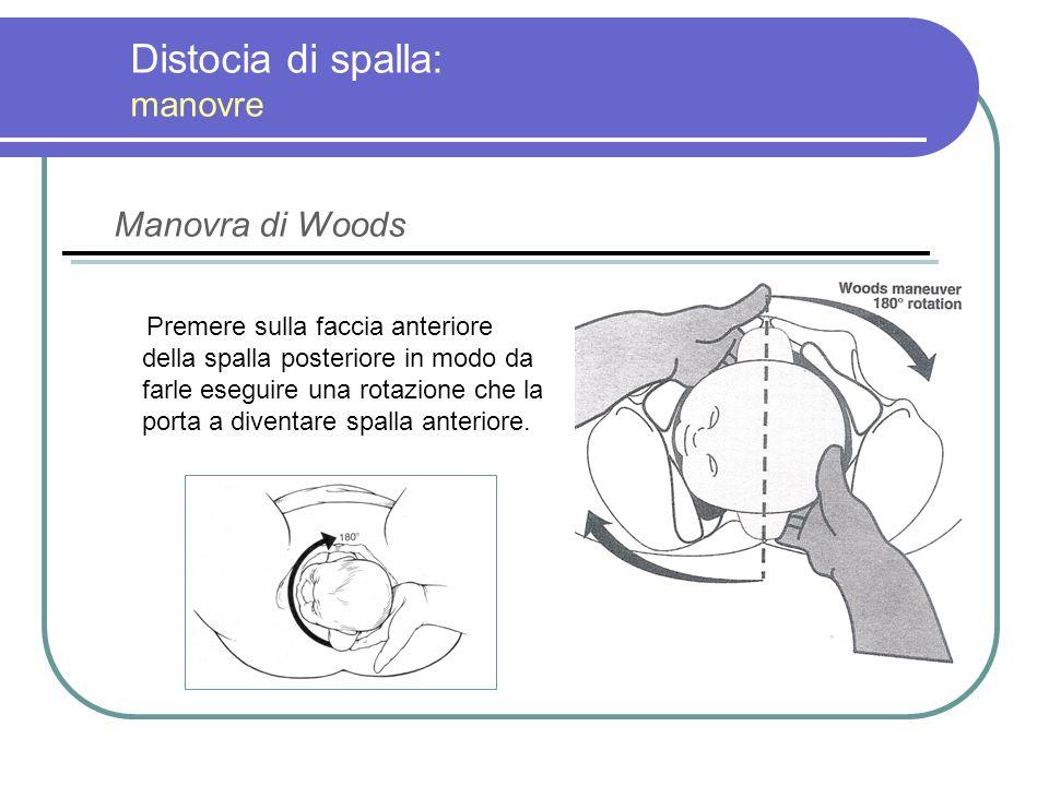 Distocia di spalla: manovre Premere sulla faccia anteriore della spalla posteriore in modo da farle eseguire una rotazione che la porta a diventare sp