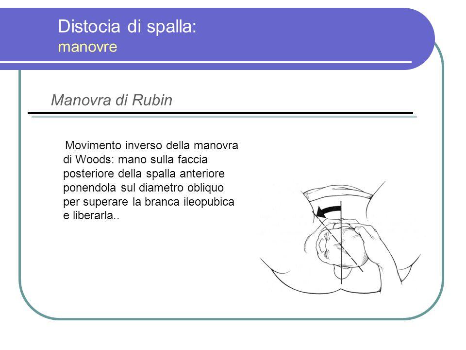 Distocia di spalla: manovre Movimento inverso della manovra di Woods: mano sulla faccia posteriore della spalla anteriore ponendola sul diametro obliq