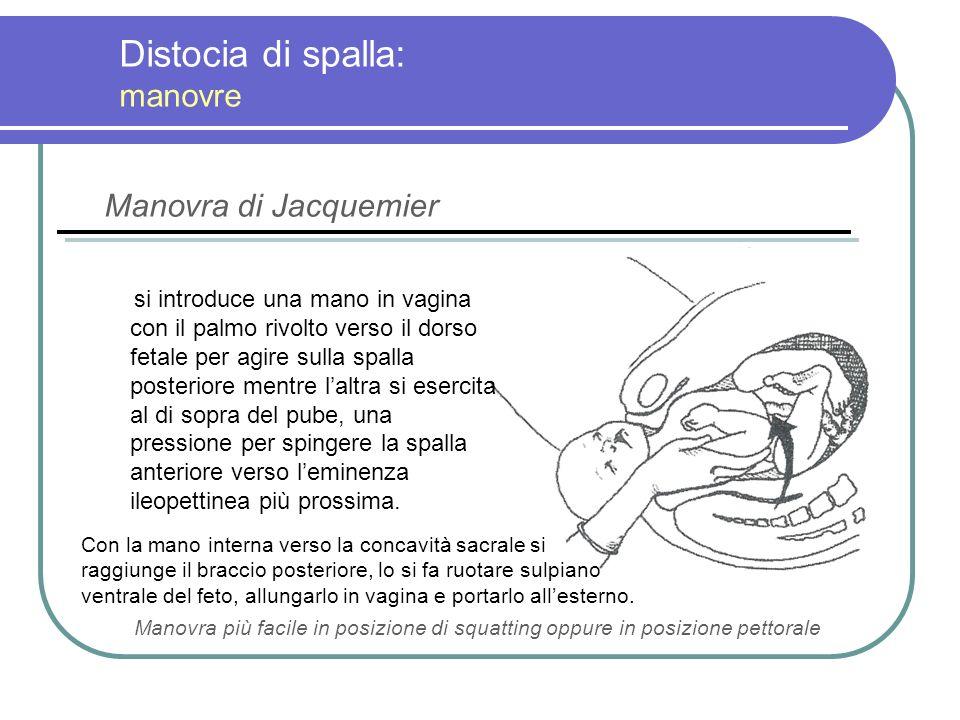 Distocia di spalla: manovre si introduce una mano in vagina con il palmo rivolto verso il dorso fetale per agire sulla spalla posteriore mentre laltra