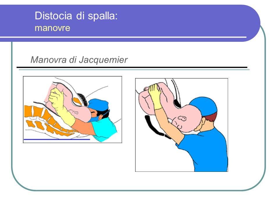 Distocia di spalla: manovre Manovra di Jacquemier
