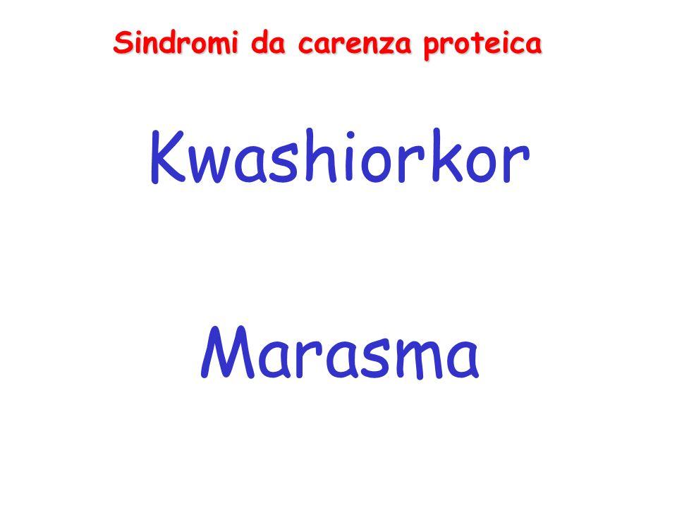 Sindromi da carenza proteica Kwashiorkor Marasma