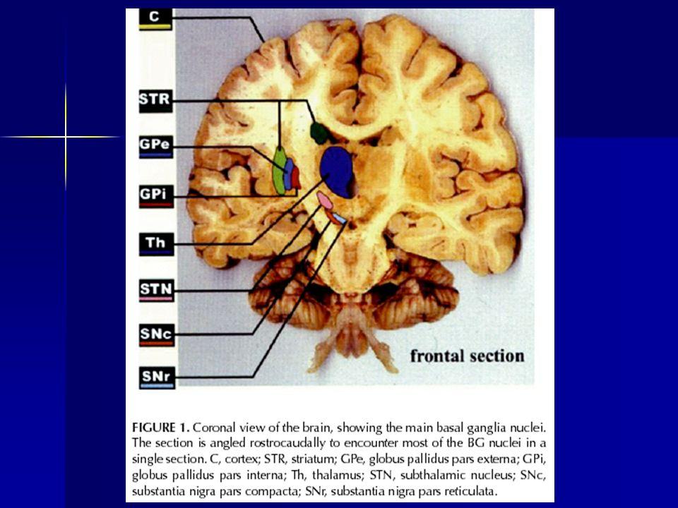 Reinterpretazione del meccanismo delle discinesie Nasce il nuovo concetto che lo stato discinetico sia causato da patterns di scarica alterati, piuttosto che semplicemente da una riduzione nella frequenza di scarica dei neuroni efferenti dei gangli della base Nasce il nuovo concetto che lo stato discinetico sia causato da patterns di scarica alterati, piuttosto che semplicemente da una riduzione nella frequenza di scarica dei neuroni efferenti dei gangli della base Il pattern di scarica neuronale include, oltre alla frequenza di scarica, un numero di fattori aggiuntivi costituiti dal grado e dalla durata dellattività bursting, dalla durata delle pause interpotenziali, dal grado di sincronizzazione neuronale spazio-temporale Il pattern di scarica neuronale include, oltre alla frequenza di scarica, un numero di fattori aggiuntivi costituiti dal grado e dalla durata dellattività bursting, dalla durata delle pause interpotenziali, dal grado di sincronizzazione neuronale spazio-temporale Il beneficio clinico associato alla pallidotomia deriva dall interruzione di un pattern di scarica alterato, piuttosto che dalla variazione nella frequenza di scarica di per sé nel GPi Il beneficio clinico associato alla pallidotomia deriva dall interruzione di un pattern di scarica alterato, piuttosto che dalla variazione nella frequenza di scarica di per sé nel GPi