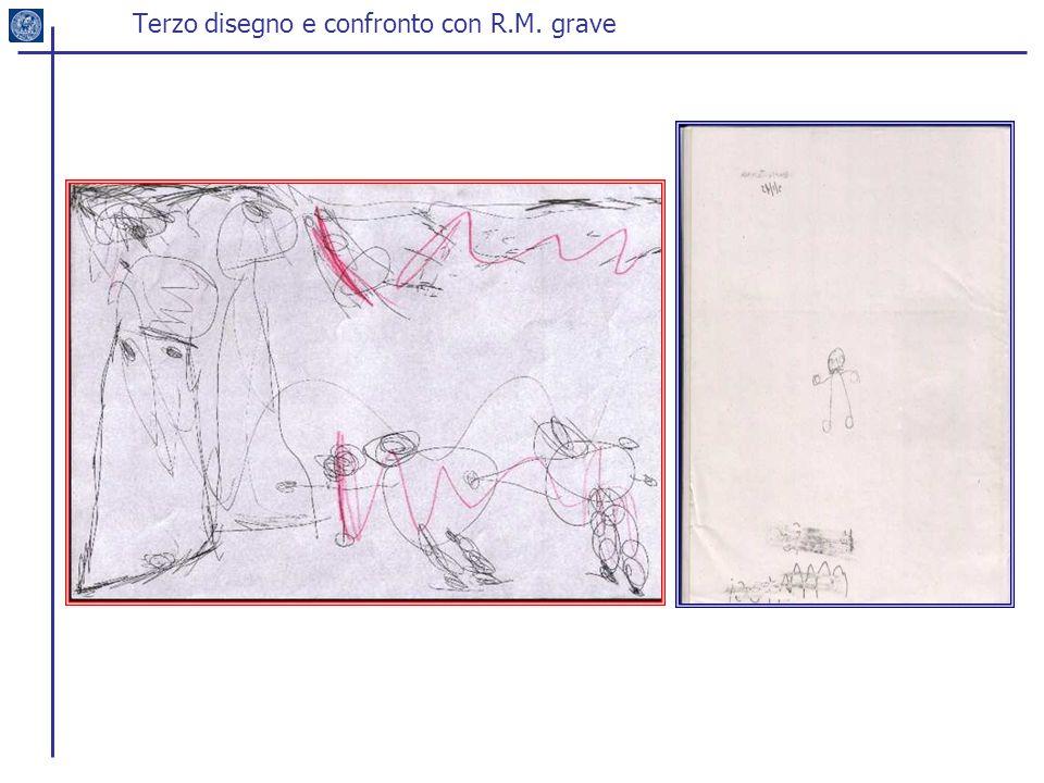 Terzo disegno e confronto con R.M. grave