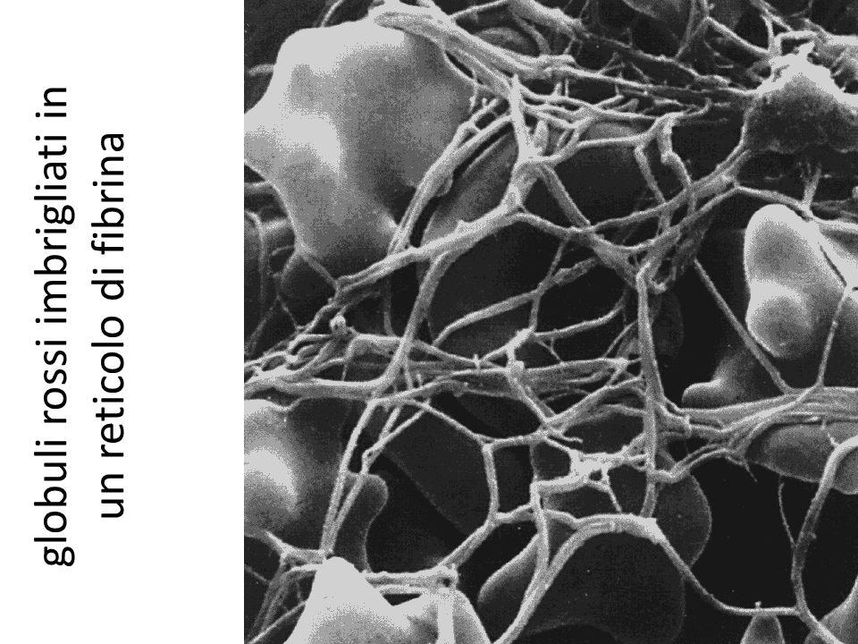 globuli rossi imbrigliati in un reticolo di fibrina