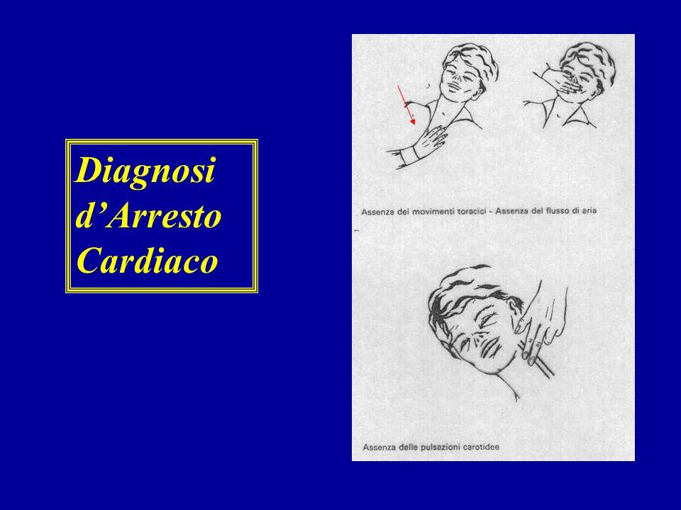 La Catena della sopravvivenza 1. Accesso precoce al sistema dei servizi di emergenza medica (118) 2. Rianimazione cardiopolmonare precoce (BLS) 3. Def