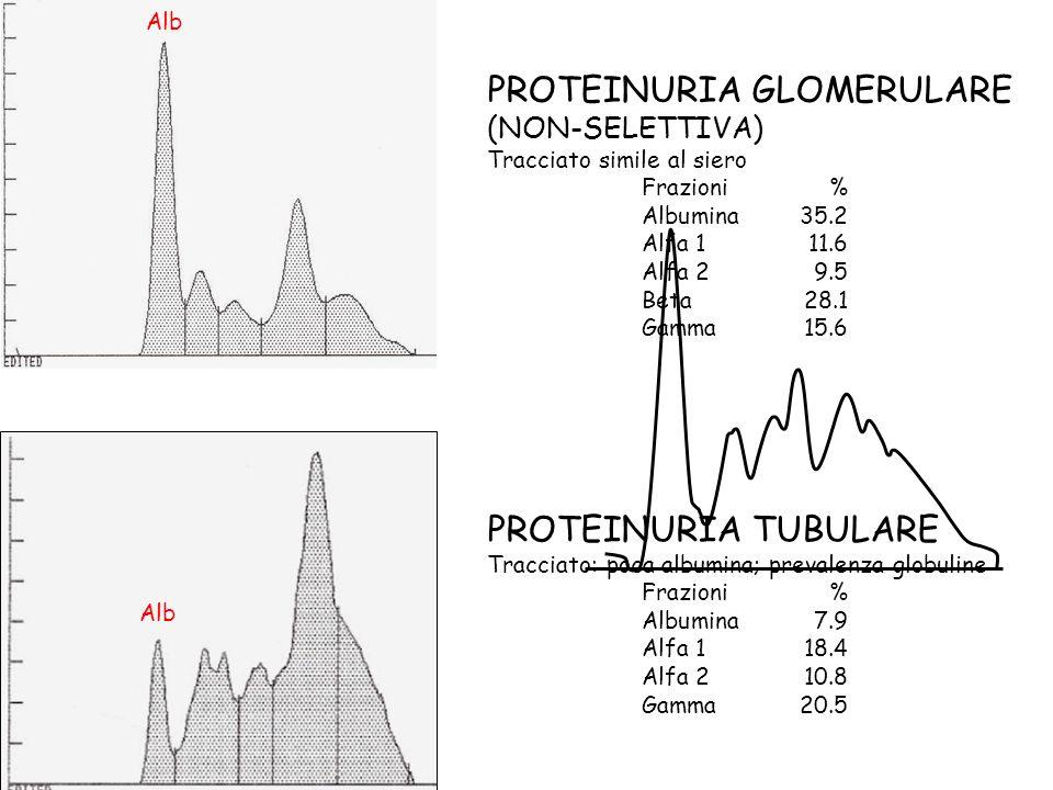 PROTEINURIA GLOMERULARE (NON-SELETTIVA) Tracciato simile al siero Frazioni% Albumina35.2 Alfa 111.6 Alfa 29.5 Beta28.1 Gamma15.6 PROTEINURIA TUBULARE Tracciato: poca albumina; prevalenza globuline Frazioni% Albumina7.9 Alfa 118.4 Alfa 210.8 Gamma20.5 Alb