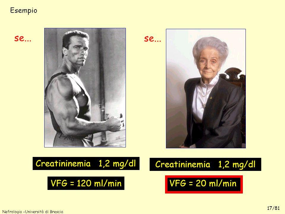 Nefrologia –Università di Brescia 17/81 Creatininemia 1,2 mg/dl VFG = 120 ml/min VFG = 20 ml/min se... Esempio