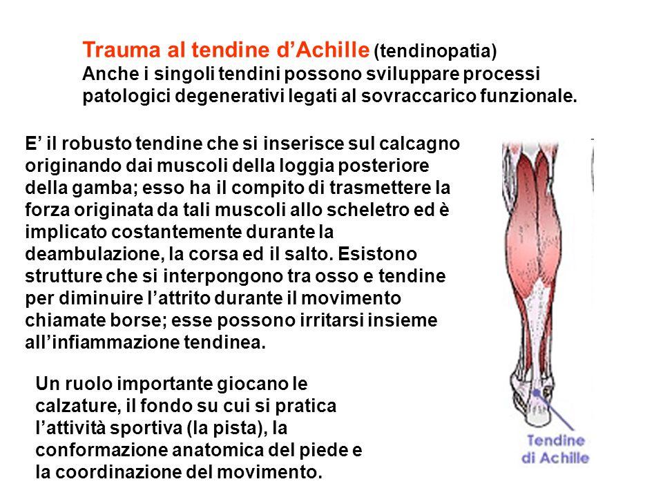 Trauma al tendine dAchille (tendinopatia) Anche i singoli tendini possono sviluppare processi patologici degenerativi legati al sovraccarico funzional