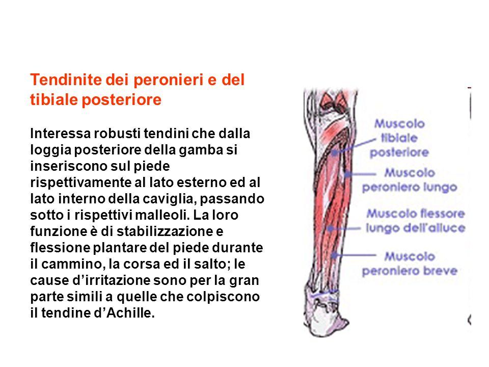 Tendinite dei peronieri e del tibiale posteriore Interessa robusti tendini che dalla loggia posteriore della gamba si inseriscono sul piede rispettiva