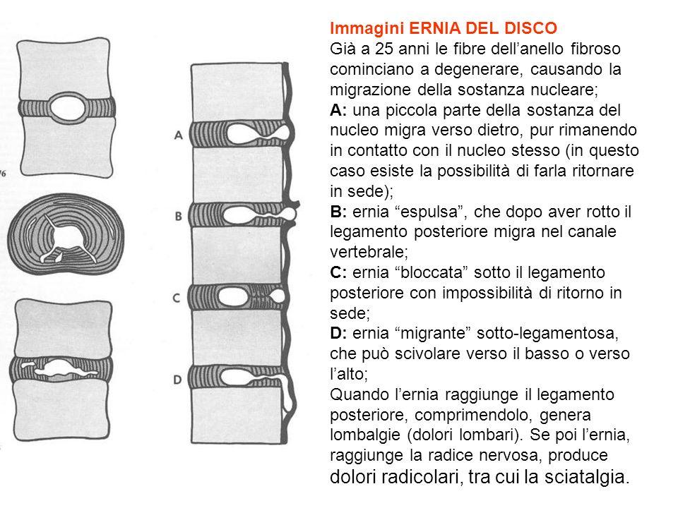 Immagini ERNIA DEL DISCO Già a 25 anni le fibre dellanello fibroso cominciano a degenerare, causando la migrazione della sostanza nucleare; A: una pic