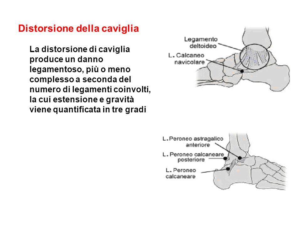 Distorsione della caviglia La distorsione di caviglia produce un danno legamentoso, più o meno complesso a seconda del numero di legamenti coinvolti,