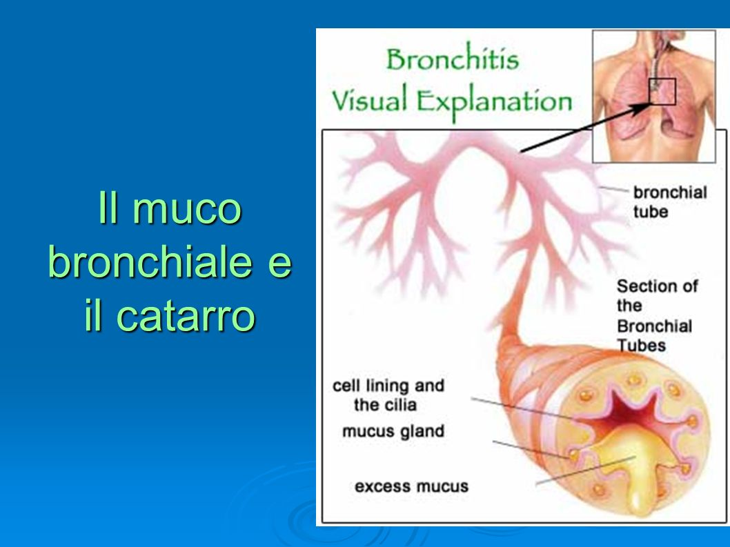 Il muco bronchiale e il catarro
