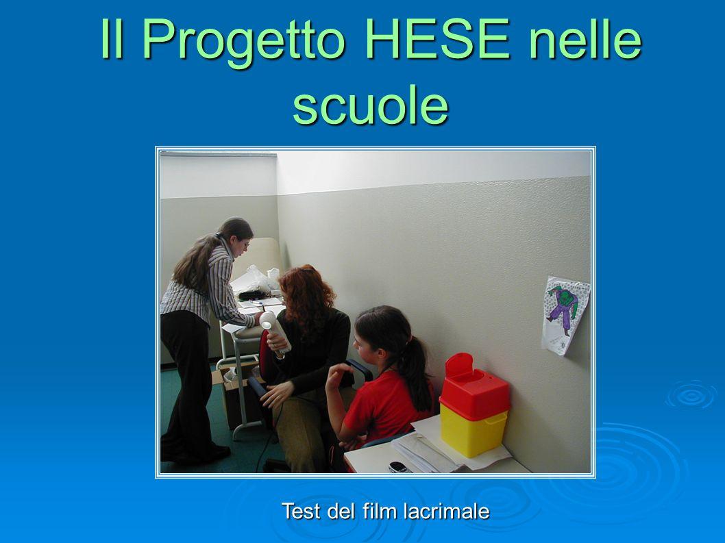 Test del film lacrimale Il Progetto HESE nelle scuole