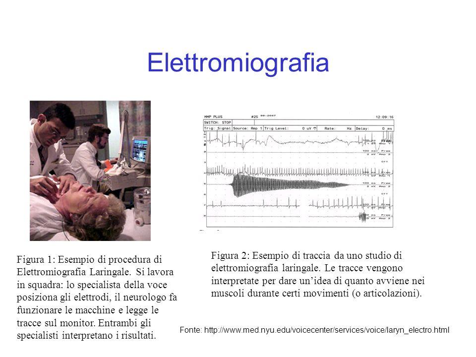 Elettromiografia Figura 1: Esempio di procedura di Elettromiografia Laringale. Si lavora in squadra: lo specialista della voce posiziona gli elettrodi