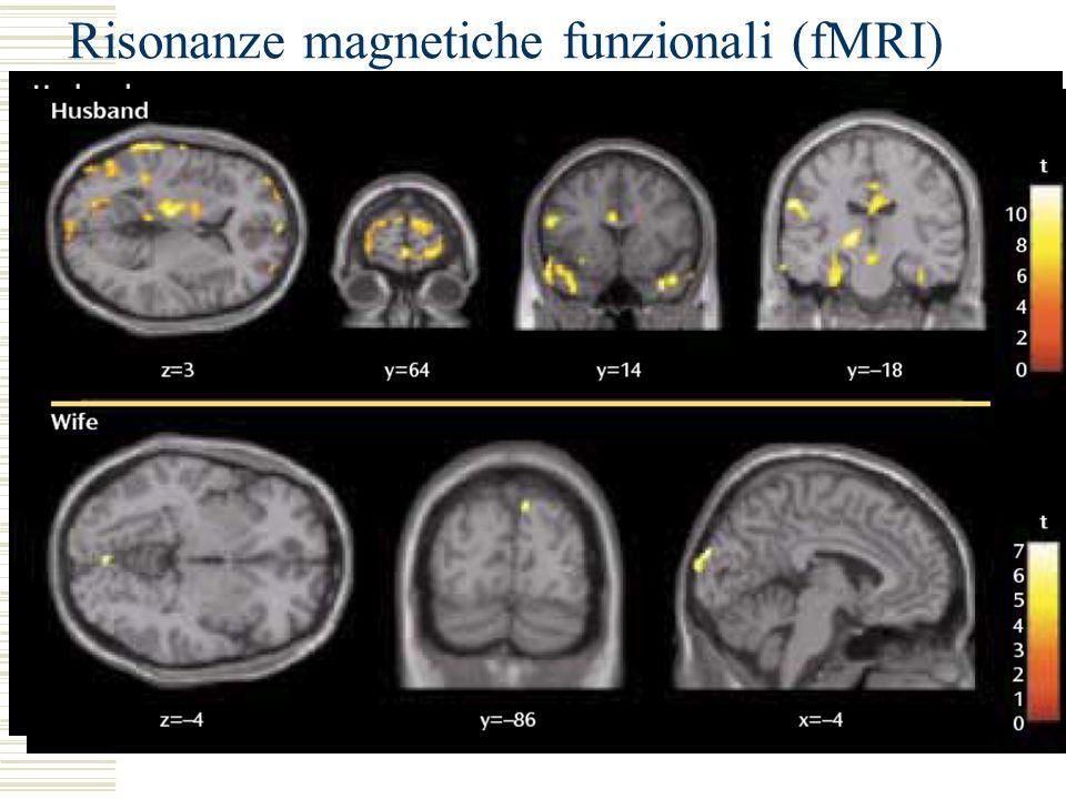 Risonanze magnetiche funzionali (fMRI)