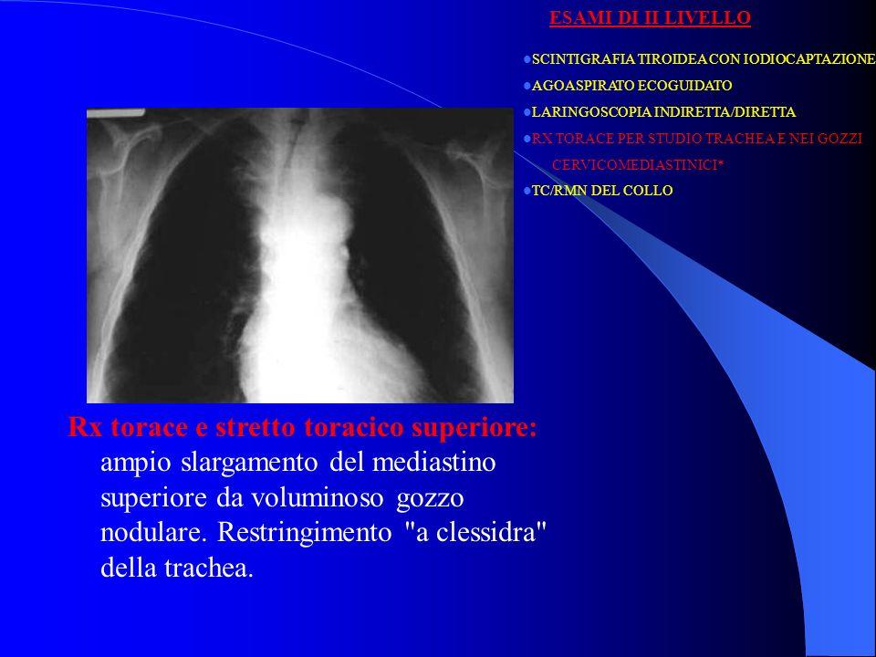 Rx torace e stretto toracico superiore: ampio slargamento del mediastino superiore da voluminoso gozzo nodulare. Restringimento