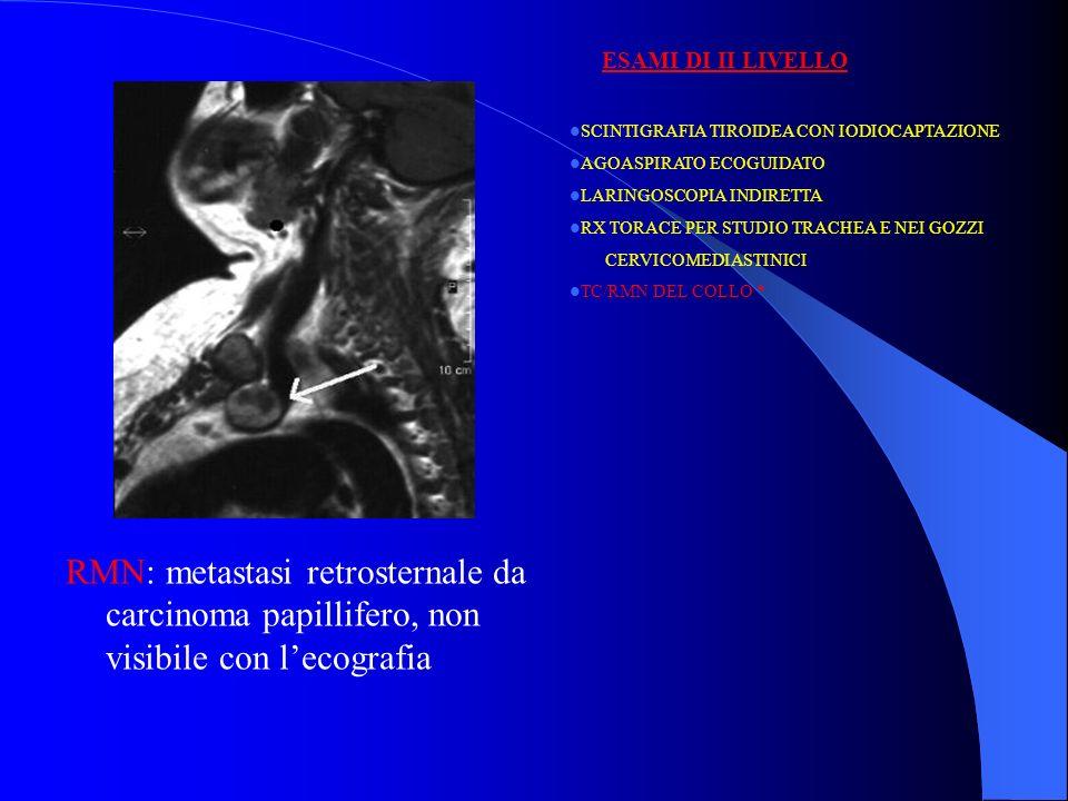 RMN: metastasi retrosternale da carcinoma papillifero, non visibile con lecografia SCINTIGRAFIA TIROIDEA CON IODIOCAPTAZIONE AGOASPIRATO ECOGUIDATO LA