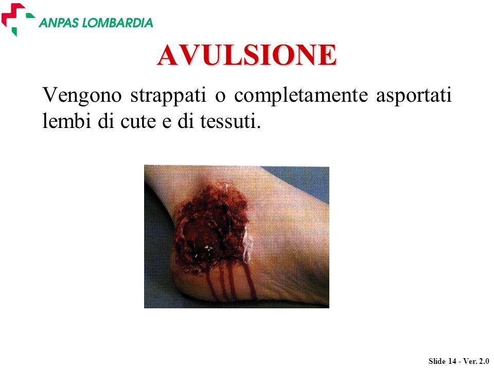 Slide 14 - Ver. 2.0 AVULSIONE Vengono strappati o completamente asportati lembi di cute e di tessuti.