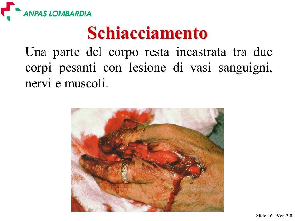 Slide 16 - Ver. 2.0 Schiacciamento Una parte del corpo resta incastrata tra due corpi pesanti con lesione di vasi sanguigni, nervi e muscoli.