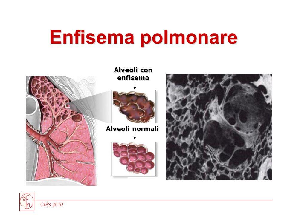 CMS 2010 Alveoli normali Alveoli con enfisema Enfisema polmonare